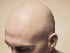 Crâne chauve
