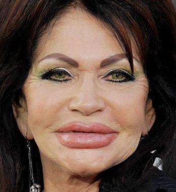"""Exemple de gonflement excessif des lèvres après injection de silicone, avec effet """"bouche de mérou"""""""