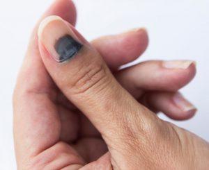 """Un """"ongle noir"""" ou """"rat"""" (registre populaire) c'est à dire un """"hématome sous-unguéal"""""""