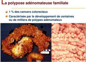 PAF (Polypose Adénomateuse Familiale)