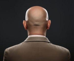 """Un """"crâne d'oeuf"""" c'est à dire une personne chauve"""