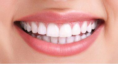 Des dents de femme