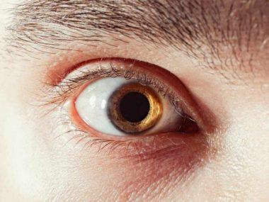 Une mydriase ou dilatation persistante de la pupille de l'oeil