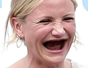 Une femme sans dents