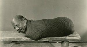 L'artiste de cirque états-unien d'origine guyanaise Prince Randian, Randion ou Rardion (12 octobre 1871 - 19 décembre 1934), porteur du syndrome tétra Amélie