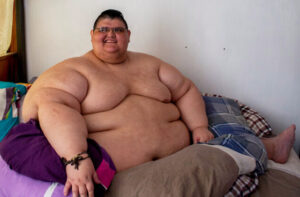 Le mexicain Juan Pedro Franco, un temps l'homme le plus gros du monde (595 kilos en 2017)