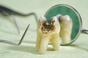 Une dent gâtée (cariée)