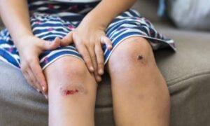 """Des genoux """"couronnés"""", c'est à dire : écorchés, râpés"""