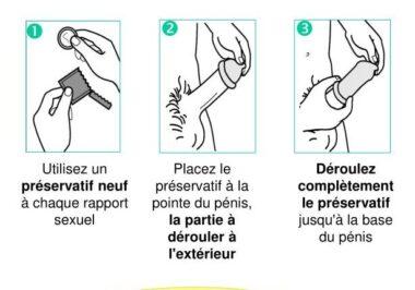 Mode d'emploi : comment enfiler un préservatif masculin