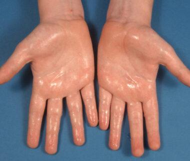 Exemple d'hyperhidrose des mains ou excès de sudation