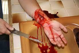 """""""Pisser le sang"""""""